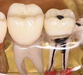 歯を残す根の治療